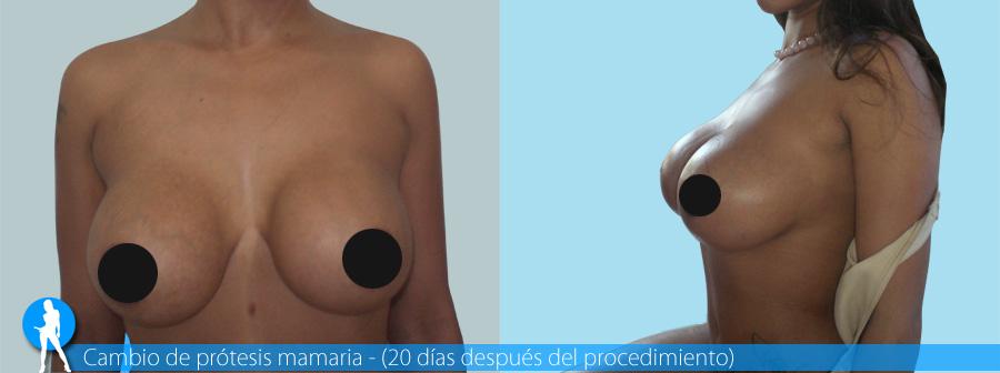 camb protesis 01